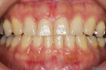 すきっ歯のマウスピース矯正02