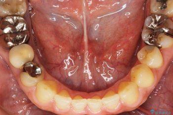 すきっ歯のマウスピース矯正06