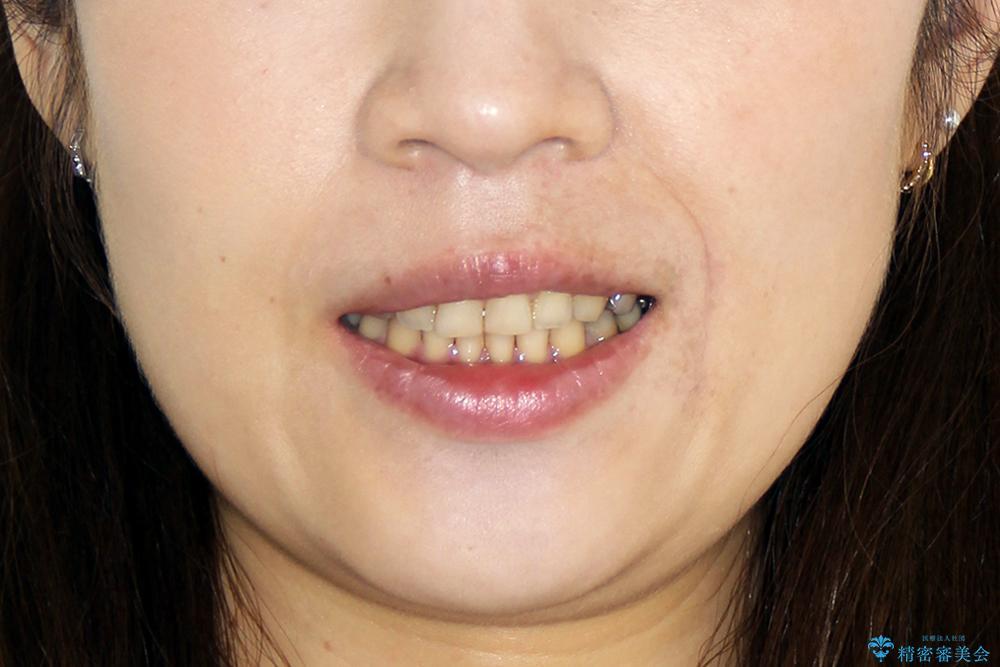 すきっ歯のマウスピース矯正08