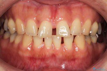 すきっ歯のマウスピース矯正01