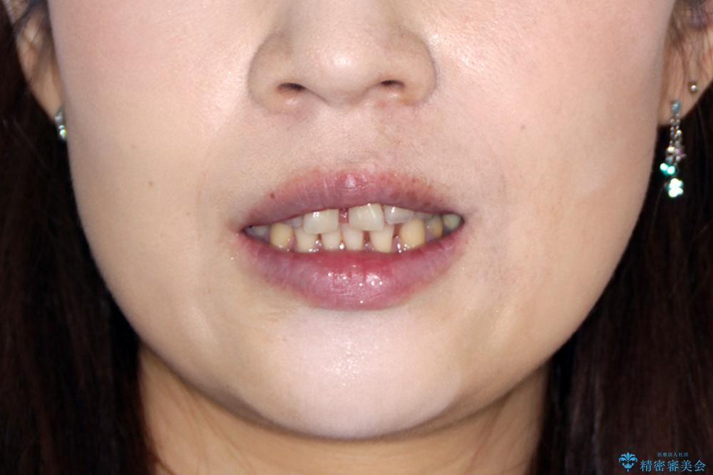 すきっ歯のマウスピース矯正07